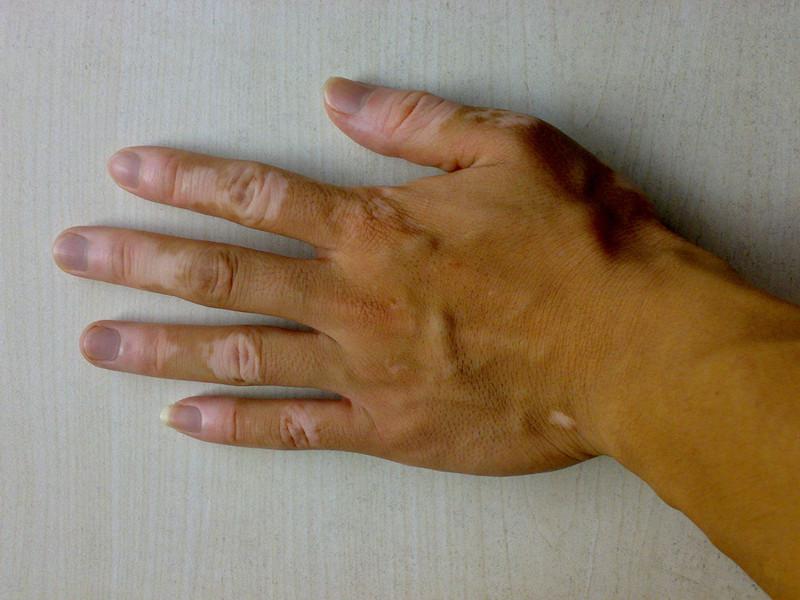 白癜风最常见的症状有哪些